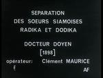 Affiche Separation des soeurs siamoises radika et dodika par le docteur doyen