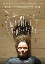 Affiche My Beautiful Broken Brain