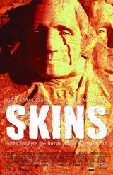 Affiche Skins